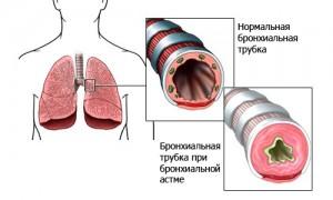 бронхиальная астма и остеопатия