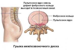 Болит шея и голова до тошноты