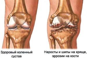 Крем вены и суставы